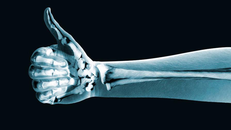 rentgenoapparat.jpg