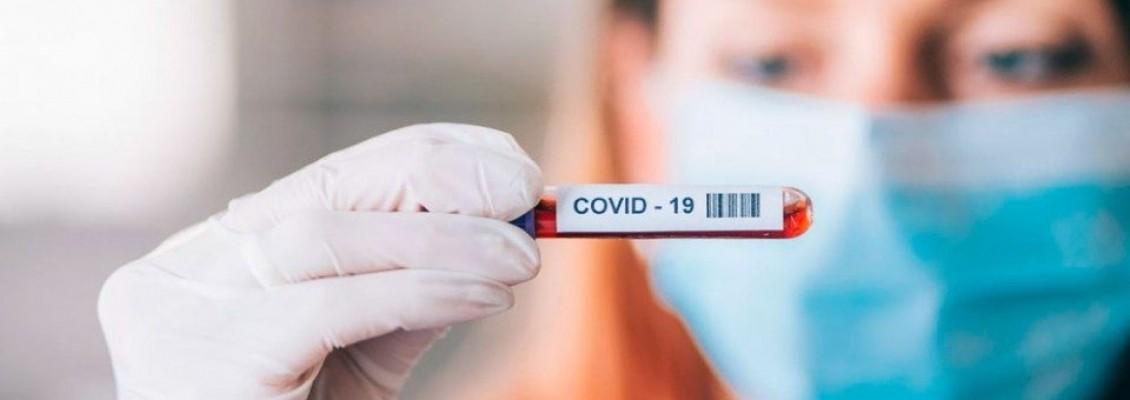 В ЛНР подтвердился первый случай заболевания COVID-19 – СЭС