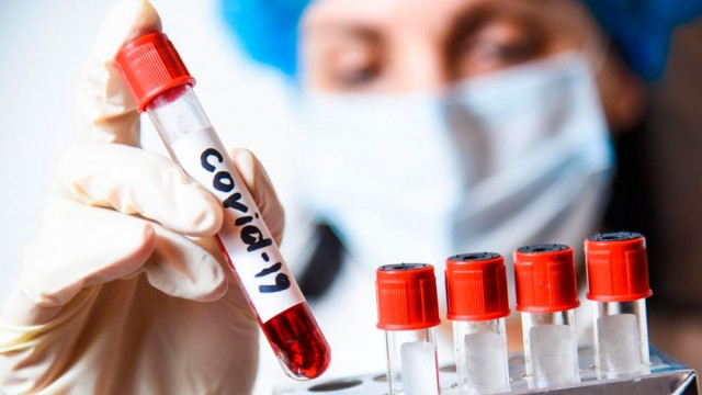 koronavirus-lnr-2.jpg
